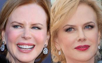 Nicole Kidman prima e dopo la rinuncia al ritocco che i media hanno attribuito al botox